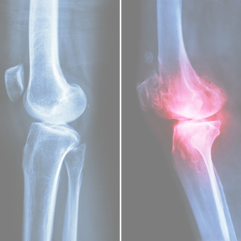 How Much Do You Know About Rheumatoid Arthritis Causes and Treatment?